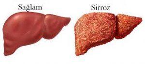 Qaraciyər sirrozu