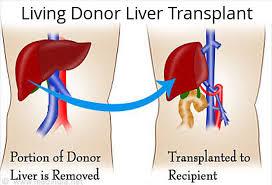 Qaraciyər donoru